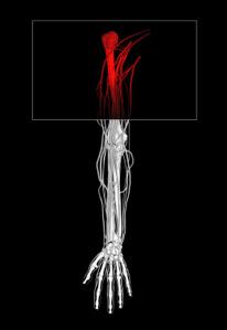Upper Arm Pain & Treatment Options